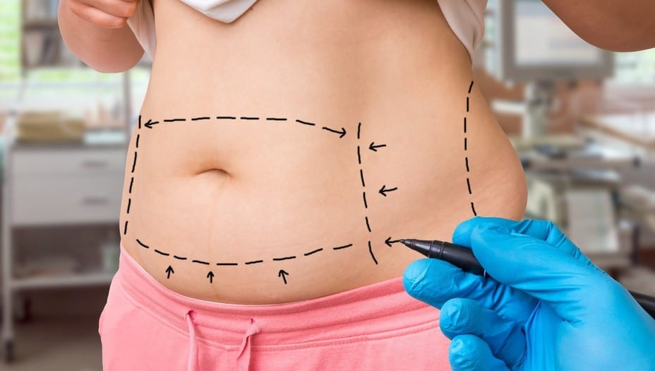 Liposuction: Benefits, Uses, and everything that you should know